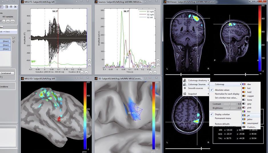 Brainstorm | MATLAB open source application