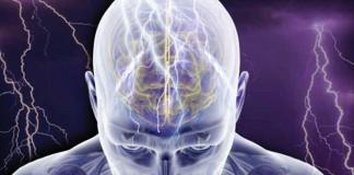 Epilepsy | Vagus Nerve Stimulation