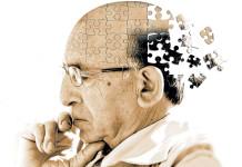 Alzheimer EEG brain