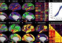Una nuova mappa del cervello umano