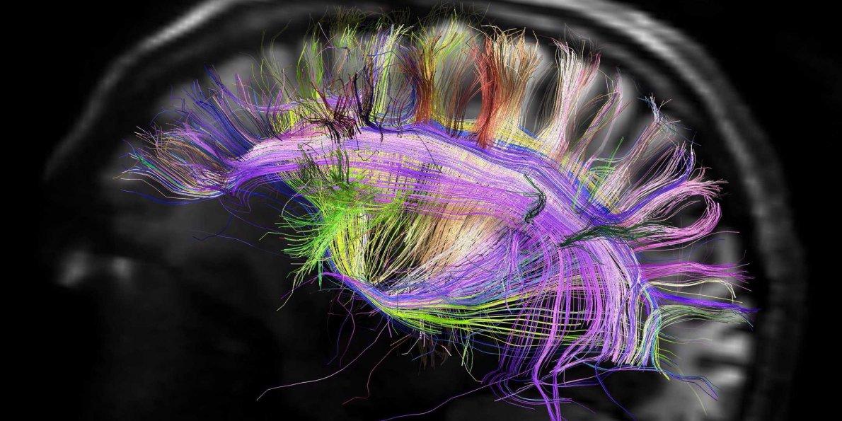 Ultrasuoni utilizzati per la riattivazione cerebrale di un cervello in coma