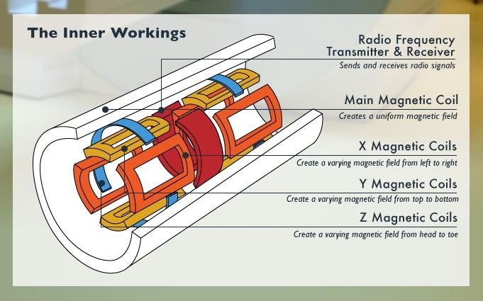 Componenti dello scanner MRI