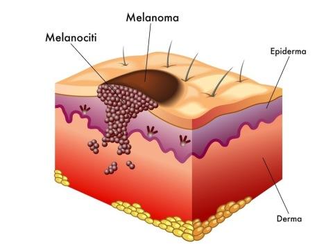 Diversi strati della pelle con esempio di melanoma