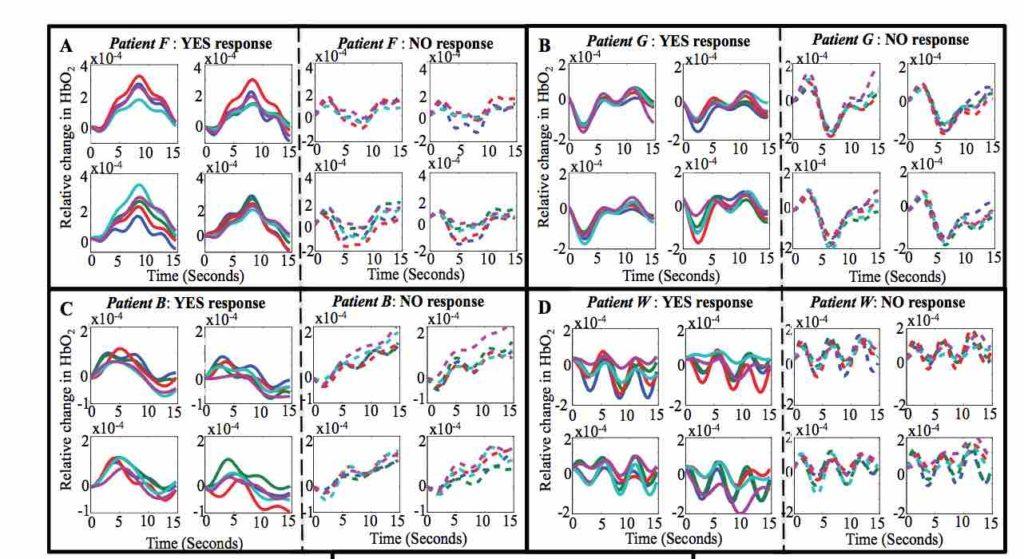 """Rappresentazione delle variazioni emo-dinamiche dei 4 pazienti in relazione alle risposte """"si"""" o """"no"""""""
