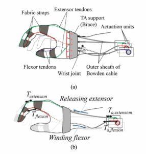 Le linee tratteggiate indicano sezioni di tendini e cavi Bowden che si trovano sul lato più lontano della mano. (A) Le frecce nere indicano la forza esercitata sul supporto tendine di ancoraggio (TA) dai cavi Bowden, e le frecce rosse indicano la forza esercitata distribuiti sul supporto TA per mano. (B) Mentre il tendine si muove verso il giunto, la tensione applicata al giunto è maggiore della tensione sull'attuatore.