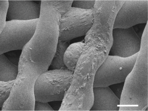 Immagine microscopica di un uovo immaturo di topo, circondato da cellule di sostegno, dopo che è stato ospitato in un'ovaia stampata in 3D per sei giorni.