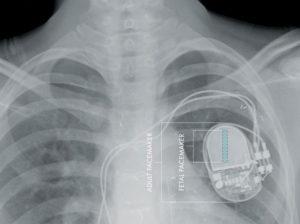 Pacemaker convenzionale e fetale a confronto