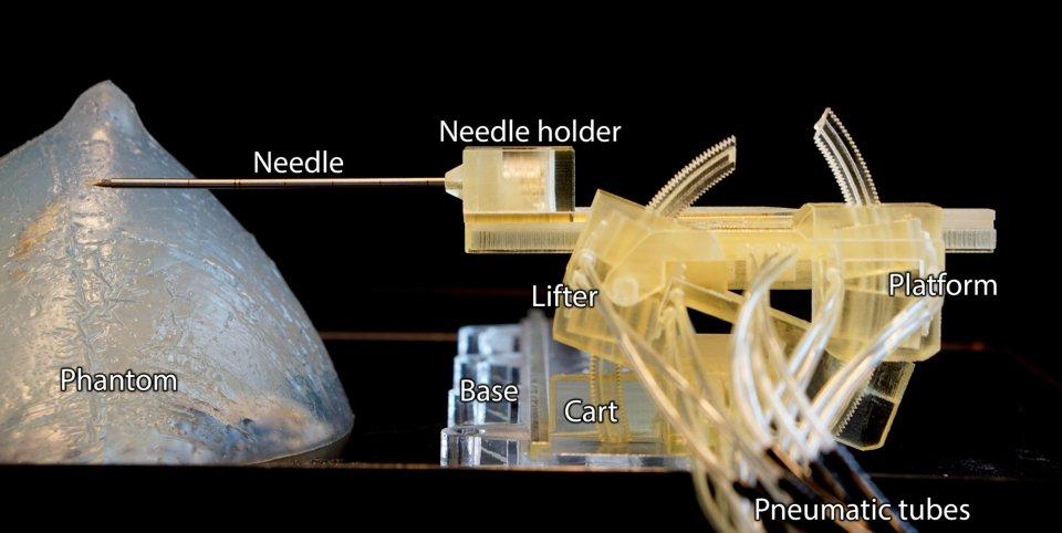 Stormram 4 stampato 3D biopsia tumore al seno