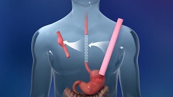 Impianto di esofago