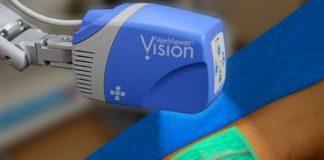 VeinViewer
