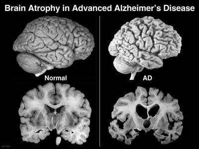 scansioni di confronto tra un cervello sano e uno affetto dal morbo di Alzheimer