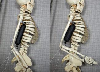 Muscoli artificiali