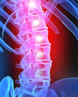 Paziente paraplegico torna a muoversi grazie alla stimolazione epidurale