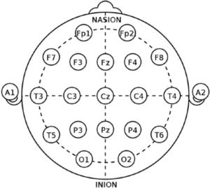Posizionamento degli elettrodi secondo la configurazione 10-20