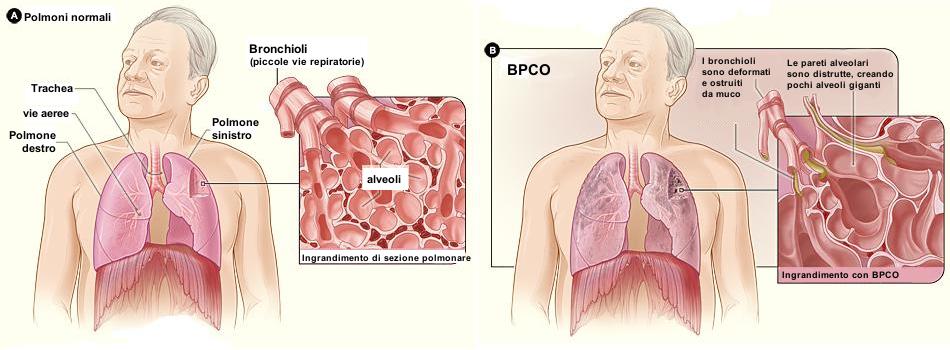 differenza tra polmoni sani e polmoni malati di Broncopneumopatia Cronica Ostruttiva