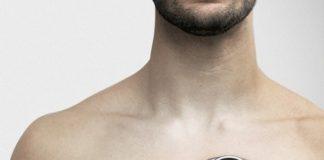 AUM Cardiovascular's CADence System