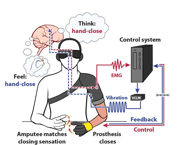Interfaccia neurale-macchina bidirezionale per ripristinare il senso di movimento