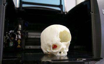 Rimosso con successo un tumore in modo non invasivo grazie alla stampa 3D