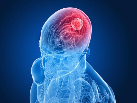 ultrasuoni focalizzati biopsia liquida