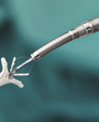 MitraClip: la riparazione della valvola mitrale è disponibile anche in Italia
