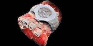 Ottenuta la prima scansione radiologica in 3D a colori