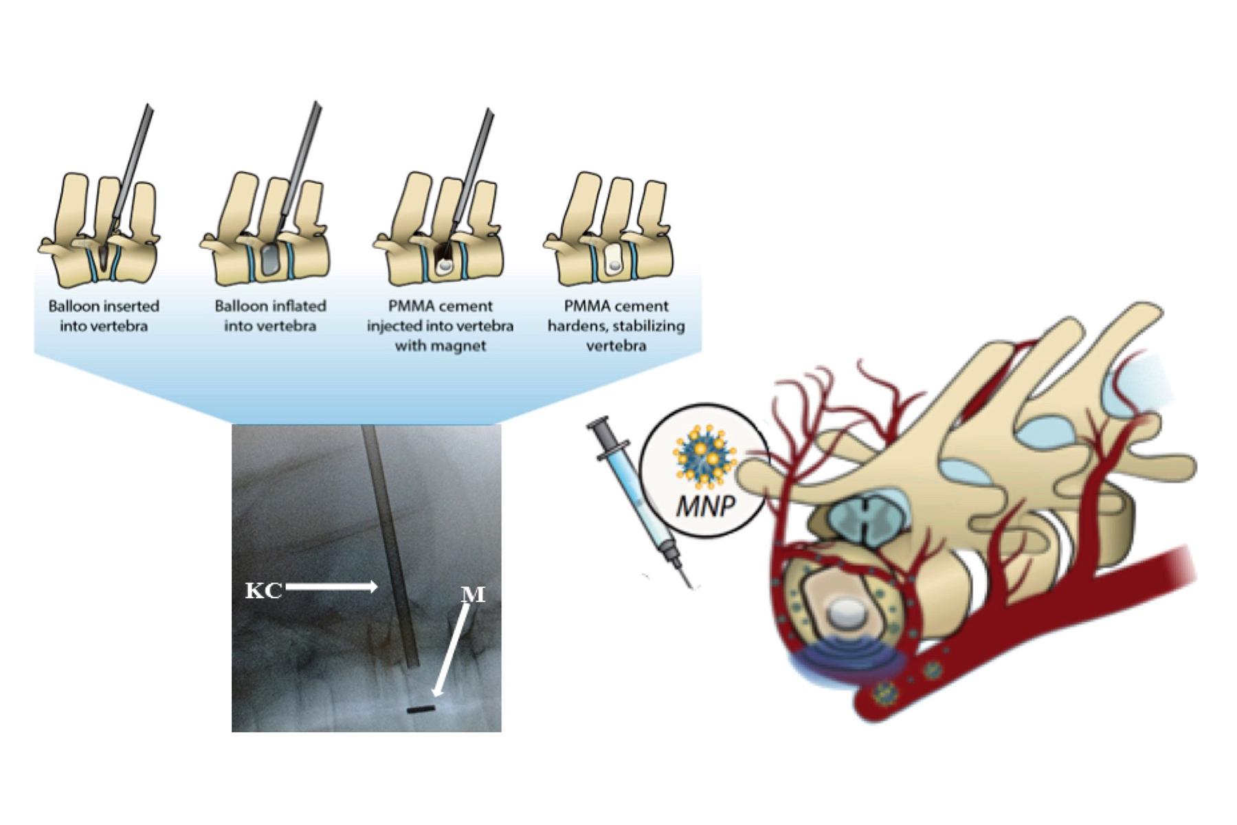 Cemento magnetico per cifoplastica