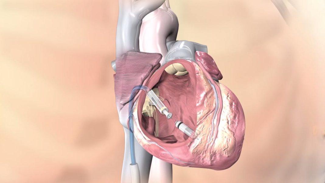 MIcra TPS:il pacemaker senza fili più piccolo al mondo