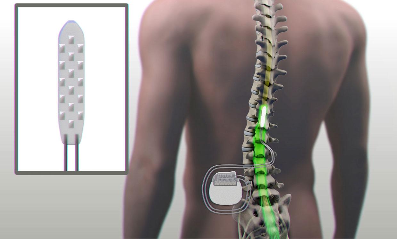 Paralizzato cammina per la lunghezza di un campo da calcio grazie all'impianto di un elettrodo nella sua spina dorsale