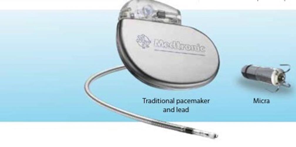 Micra TPS: il pacemaker senza fili più piccolo al mondo