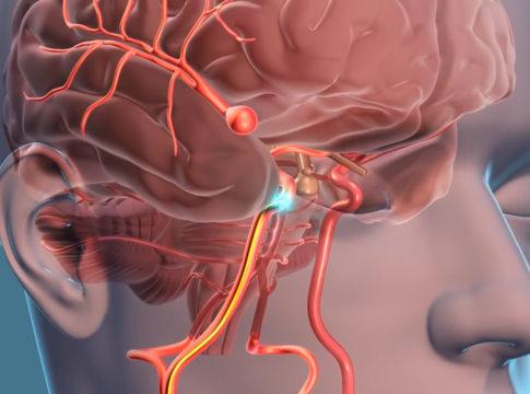 Monitoraggio wireless di aneurismi intracranici grazie ad un nanosensore integrato nello stent flow-diverter