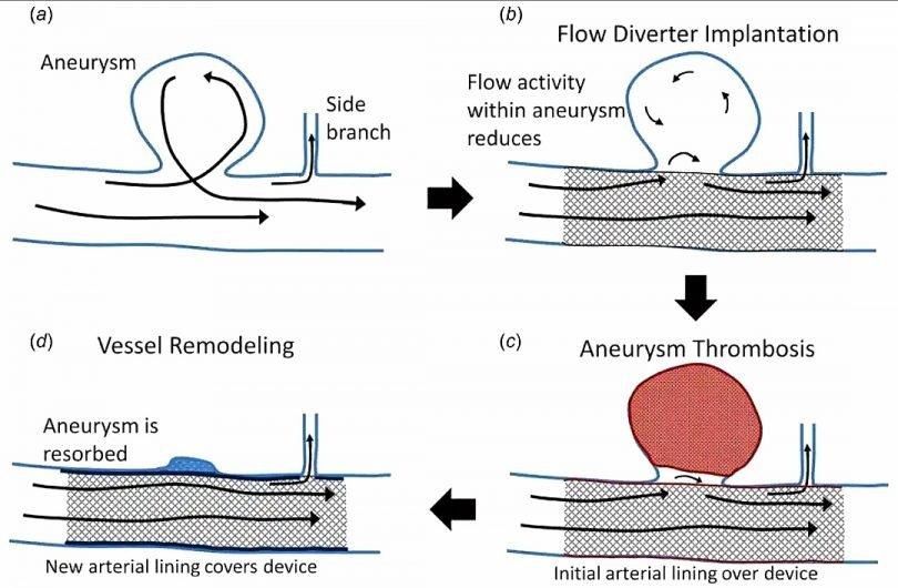 Monitoraggio wireless degli aneurismi intracranici grazie ad un nanosensore integrato nel flow-diverter