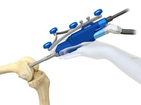 Napoli: primo intervento di chirurgia robotica ortopedica in Campania