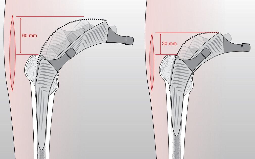 Protesi d'anca mini-invasiva: il Rizzoli di Bologna ispira gli USA