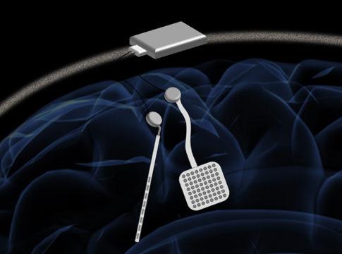 WAND: l'impianto cerebrale finanziato dalla fondazione di Zuckerberg