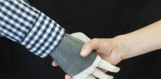 Dall'Italia alla Svezia: impiantata la prima mano robotica permanente