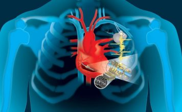 Alimentare i pacemaker con i battiti del cuore: una soluzione possibile