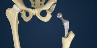 Progetto EvPro: un nuovo biomateriale per migliorare la protesi d'anca