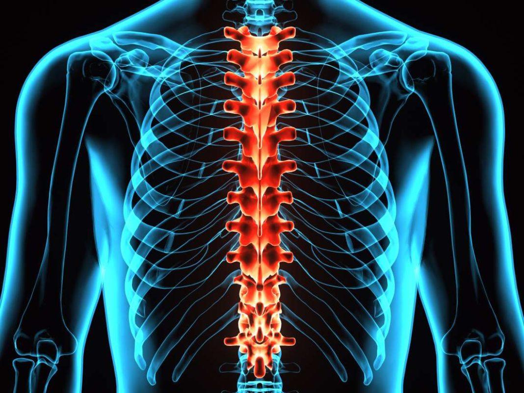 Altre 3 persone tornano a camminare grazie alla stimolazione spinale