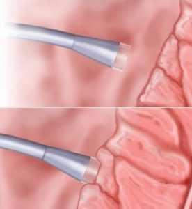 Sensore tattile del catetere