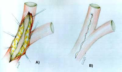 Esempio sutura chirurgica