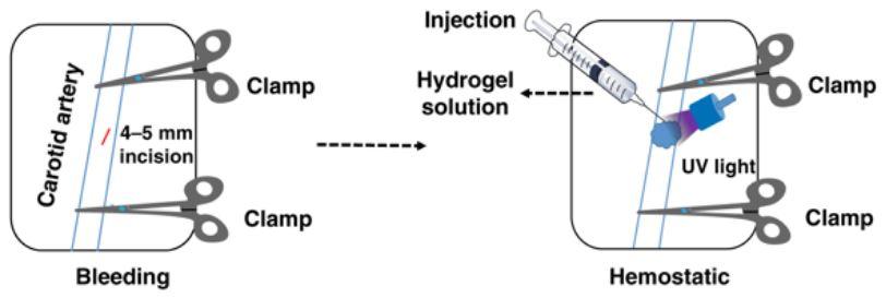 Rimarginare ferite senza punti di sutura grazie all'uso della bio-colla
