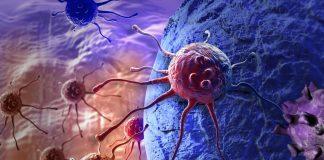 Cellule tumore termoablazione