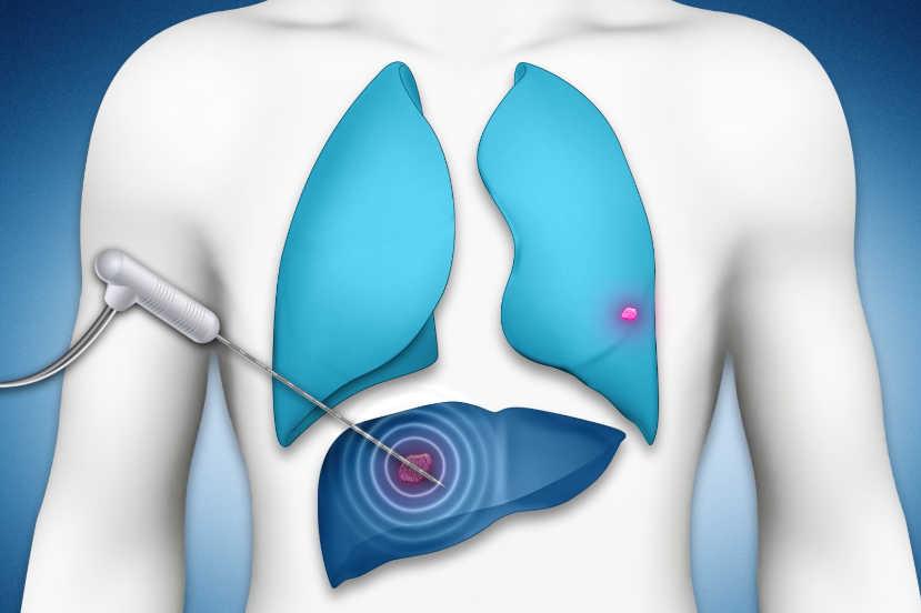 Padova termoablazione tumori