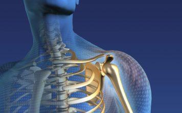 Protesi spalla