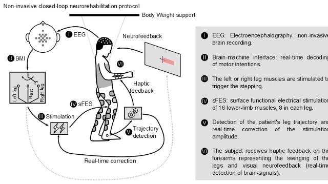 Stimolazione muscolare controllata dal cervello