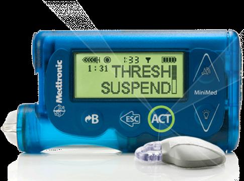 MiniMed 670G: il primo pancreas artificiale lanciato da Medtronic