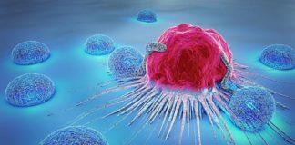 chemioterapia tumori