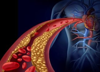 Aterosclerosi: quanto rischiamo? Ce lo dice la legge di Poiseuille