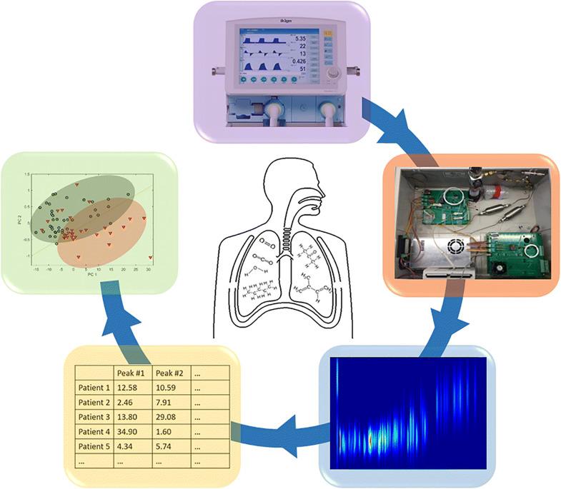 Analisi respiro sindrome distress respiratorio acuto