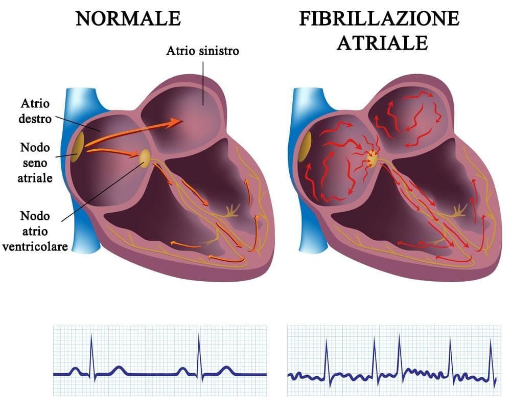 fibrillazione atriale normale confronto